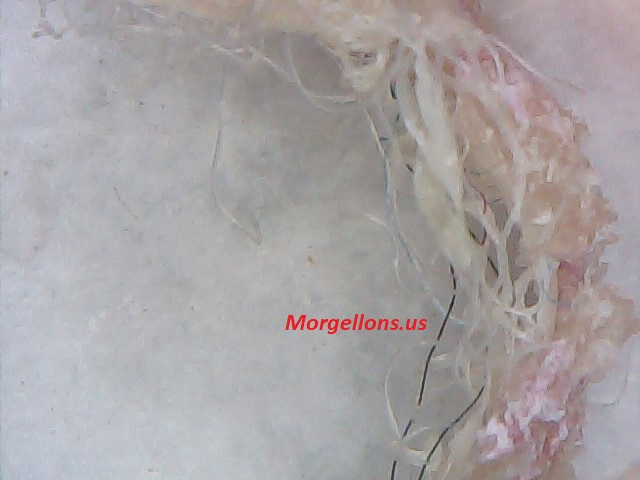 COVID 19 Is morgellons Disease: The Silent Pandemic, Doctors and scientist ignore it Aspergillus Fumigatus Is Morgellons Disease: The Silent Pandemic