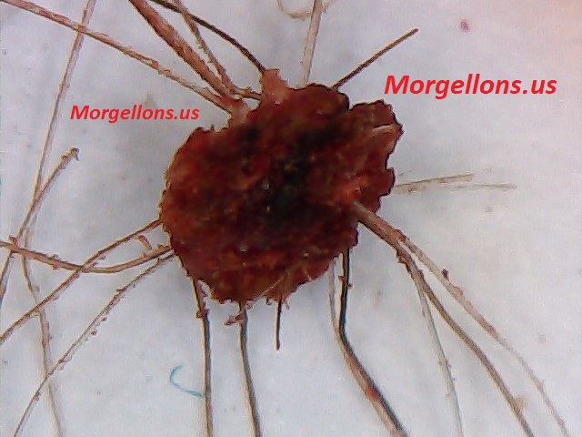 Aspergillus Fumigatus is the real pandemic - Morgellons Disease: The silent Pandemic!!!