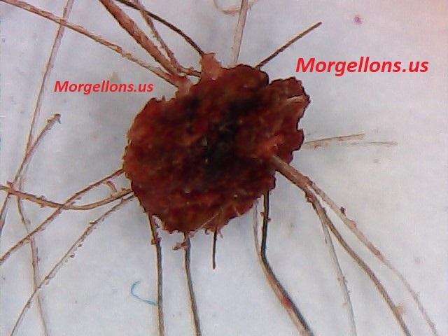 Aspergillus Fumigatus is the real pandemic - Morgellons Disease: The silent Pandemic!!!